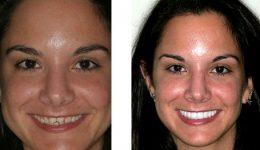 съвременно-избелване-на-зъбите