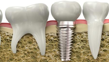 зъбен-имплант
