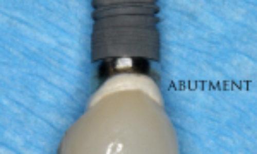 зъбни-импланти-150x150
