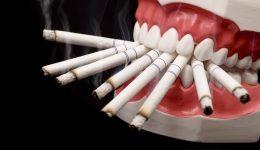 влияние-на-цигарите-върху-зъбите